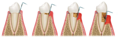 Gum Disease Treatment   Pampering Smiles   Dentist Camp Springs, MD