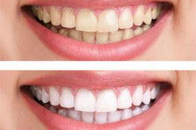 Teeth Whitening | Pampering Smiles | Camp Smiles, MD Dentist